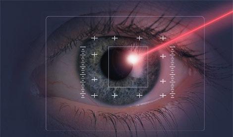 riesgos de la cirugia ocular laser