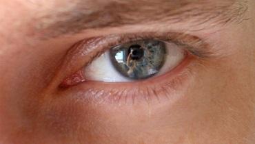 moscas-en-los-ojos-preguntas-frecuentes