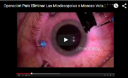 como-eliminar-las-moscas-volantes-de-la-vista-con-la-vitrectomia