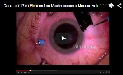 como-eliminar-las-moscas-volantes-de-los-ojos-con-la-vitrectomia