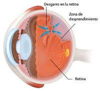 cuerpos-flotantes-en-la-vista-alertan-desgarro-de-retina