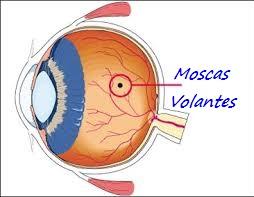 moscas-volantes-en-los-ojos-como-eliminarlas