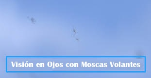 vision-ojos-con-moscas-volantes