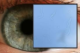 por-que-tengo-miodesopsias-en-los-ojos