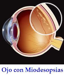 que-son-las-miodesopsias-moscas-en-los-ojos