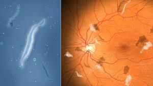 tratamientos-para-las-moscas-en-la-vista