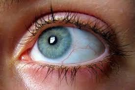 principales-causas-de-las-miodesopsias-o-moscas-oculares